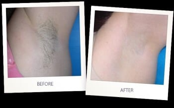 Restorative Laser Therapy - $250 Gift Card