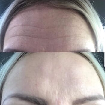 Aesthetica Skin Health & Wellness Clinic- 30 Units of Botox for Half Price