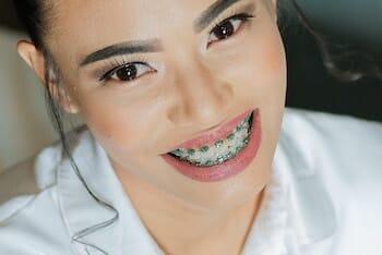 Braces from Boni Orthodontics! 3 Locations!