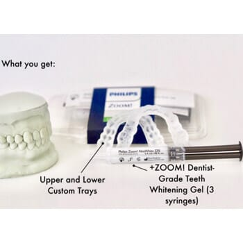 Knowlton Dental Associates - In-Home Whitening Trays