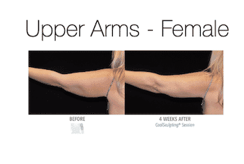 Arms - CoolSculpting from Felicite Day Spa