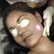 Infinity Med-I-Spa - Erbium Laser Wrinkle Reduction (three single area treatments)